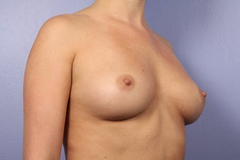 Breast Augmentation before 338711