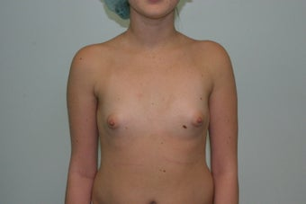 Breast augmentation before 365698