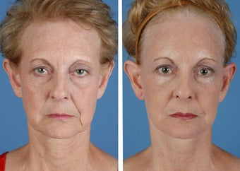 Facelift, Browlift, Upper and Lower Eyelid Surgery before 253952