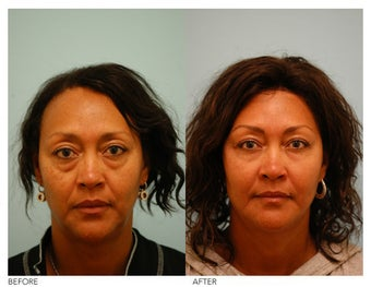 Fat Transfer/Fat Grafting/Facial Rejuvenation before 136357