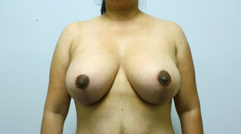 Augmentation Mastopexy after 237577