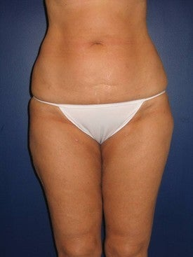 Liposuction of abdomen, hips, knees, and inner and outer thighs after 592900