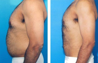 Liposuction before 636171