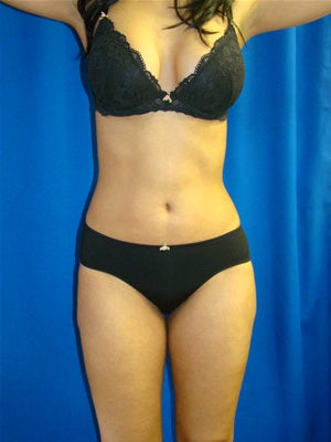 Liposuction after 89471