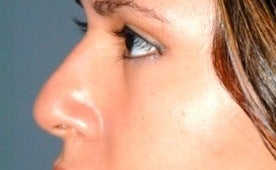 Non-surgical nose job with Restylane