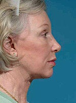 Facelift, eyelid surgery, neck & brow lift 458802