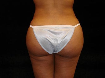 Buttocks Augmentation by Fat Transfer  after 186433