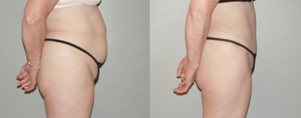 Abdominoplasty after 374985