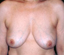 Breast implant removal after 316569