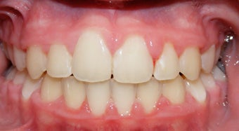Teen Orthodontic Treatment (case #1JM) after 224715