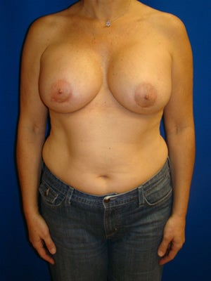 Breast Augmentation Surgery after 149370