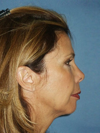 Chin augmentation with facial rejuvenation before 250151
