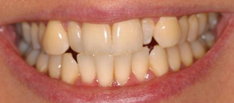 Invisalign, whitening, bonding before 119940