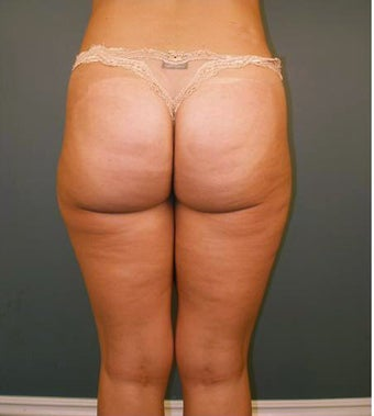 Tumescent Liposuction after 552078