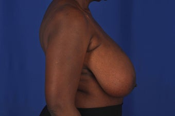 62 year-old woman desired bilateral breast reduction 647695