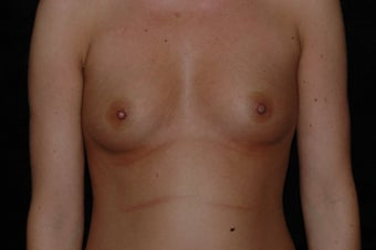 Breast Augmentation before 336398
