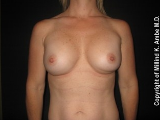 Breast Implant Revision before 542387