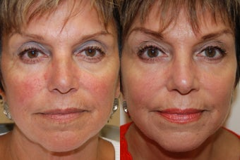 Non-Surgical Facial Rejuvenation with Silikon-1000 before 187667