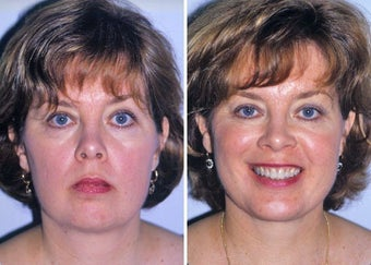 Liposuction of neck and chin augmentation before 332849