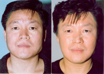 Non-Surgical Face Lift- Exoderm  before 242989