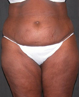Tummy Tuck with Flank Liposuction before 330898