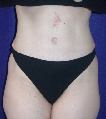 Tummy Tuck (abdominoplasty) after 208463