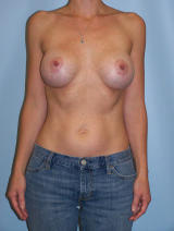 Revisionary Breast Surgery with Silicone-Gel Implants before 120834