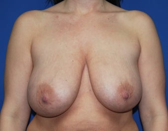 Breast reduction before 248353