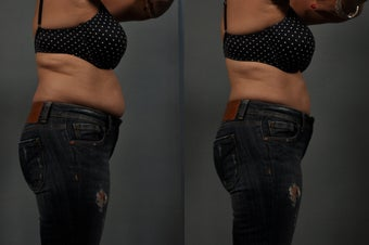 Liposuction Abdomen before 549756
