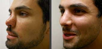 Rhinoplasty before 407965
