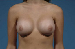 Breast Augmentation after 132009