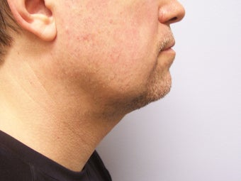 Chin/Neck Liposuction after 593084