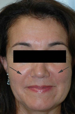 Restylane for laugh lines  after 91298