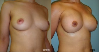 Breast reconstruction following bilateral mastectomy after 416794