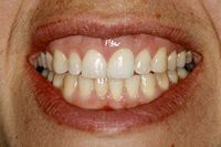 Dental Implants on the front tooth