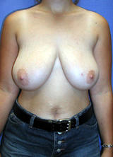 Breast Reduction Surgery before 120105