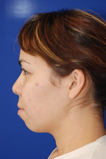 Chin Implant before 365471