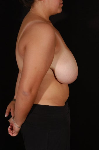 Breast Reduction before 130613
