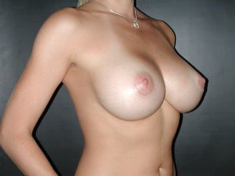 Breast Augmentation  after 110080