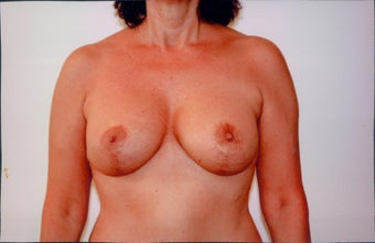 Breast Lift after 218954