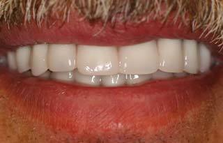 Dental Implants after 510550