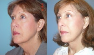 Lower Facelift, Brow Re-positioning, Upper Eyelid Surgery after 366963