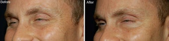 Botox for Crows Feet  before 97870