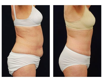 Abdominoplasty - Tummy Tuck 396167