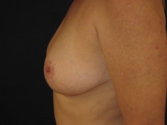 Breast Reduction after 291350
