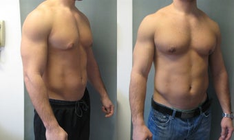 Gynecomastia New York 349231