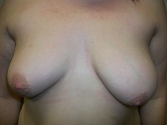 Breast Correction before 281755