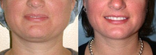 Liposuction (chin and jaw line) before 96475