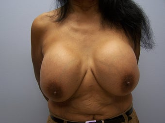 Breast implant removal and breast lift before 589930