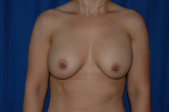 30 year-old woman with capsular contracture